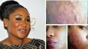 Photo: How I Cured My Horrible Acne - Mbong Amata