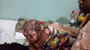 Photos: Baby Totally Disfigured After Boko Haram Attack (Burnt Face And Eye)