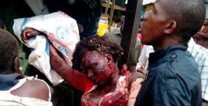 Very Graphic Photos Of Victims Of Borno Bomb Blast