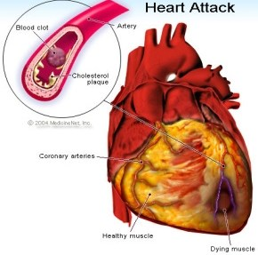 Why More People Die Of Heart Attack At Winter - S'cientists