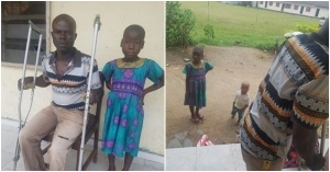 """""""A Pastor Told My Father That I Am The Cause Of His Blindness"""" – Girl Narrates How Her Father Beat Her With A Machete"""
