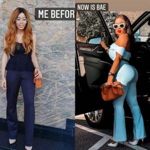 Former BBNaija Housemate, Nina Ivy Shares Before And After Surgery Photos