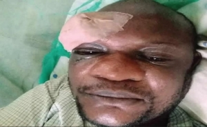 How Angry Customers Stabbed Ogun IBEDC Official In The Eye For Distributing Bills (Photo)