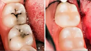 3 home remedies for tooth decay and cavities