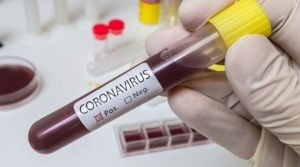 Nigeria records five new coronavirus cases — toll hits 70
