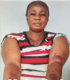 Story Of Woman Who Was Beaten To A Pulp By Landlord For Refusing His Love Advances (Photo)
