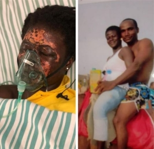 Ghanaian Man Bags 10 years In Jail For Pouring Acid On Wife