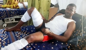 Blood Came Out Of My Mouth, Ears After Blast - Edet, Lagos Explosion Victim Tells His Tale