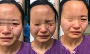 Nigerian Coronavirus Patient Bites Chinese Nurse After She Stopped Him From Leaving Quarantine