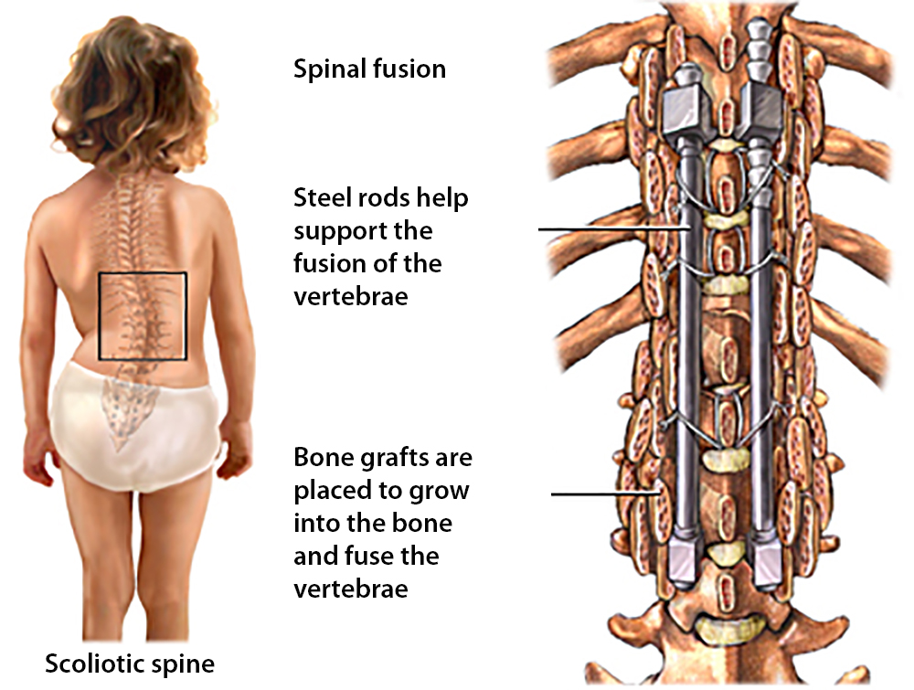 Image result for spinal fusion surgery