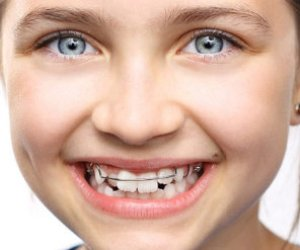 Preventive and interceptive orthodontics for children