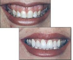 Reshaping and recontouring gums
