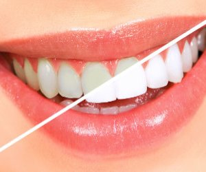 Teeth Whitening and Bleaching