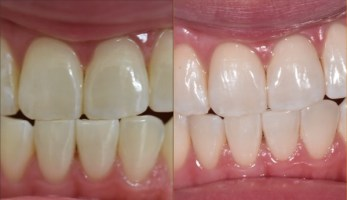 Whitening Before and After