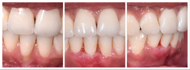 Before and after of a single tooth recession and it's correction using patient's skin as a graft