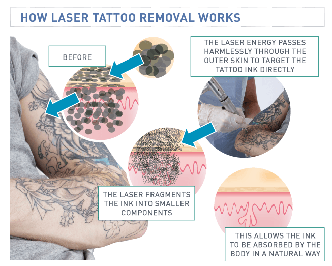 St Pete Tattoo Laser Tattoo Removal Aftercare