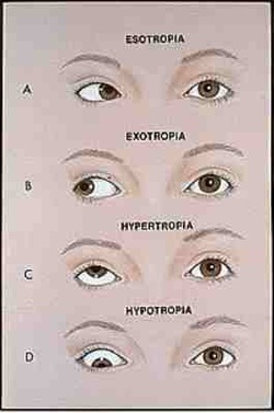 eye diagram not labeled eaton lighting contactor wiring category: exotropia - strabismus