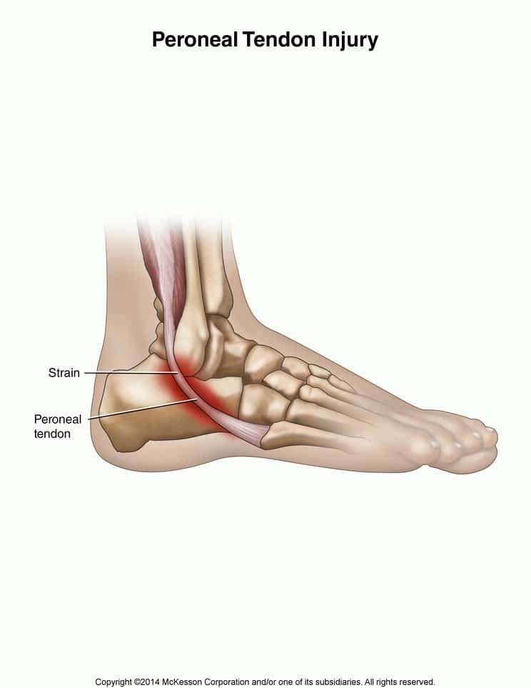 Torn Peroneal Tendon | Causes Symptoms Treatment And ...