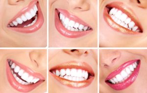dantu balinimo priemones