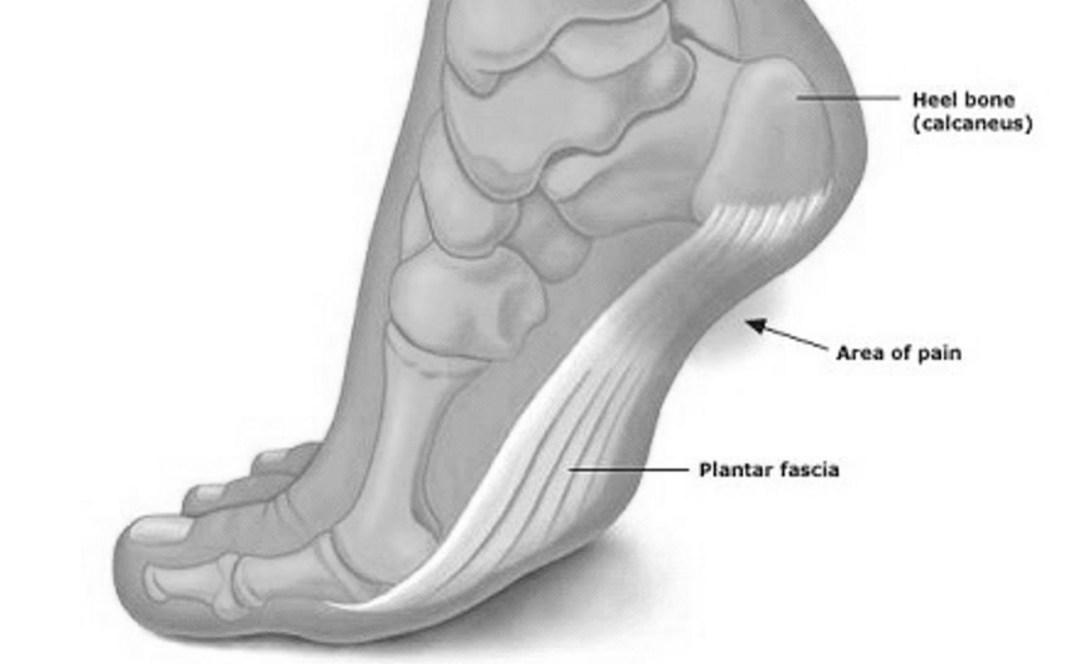 Plantar Fasciitis – Fix Your Feet!