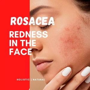 Rosacea HM 77