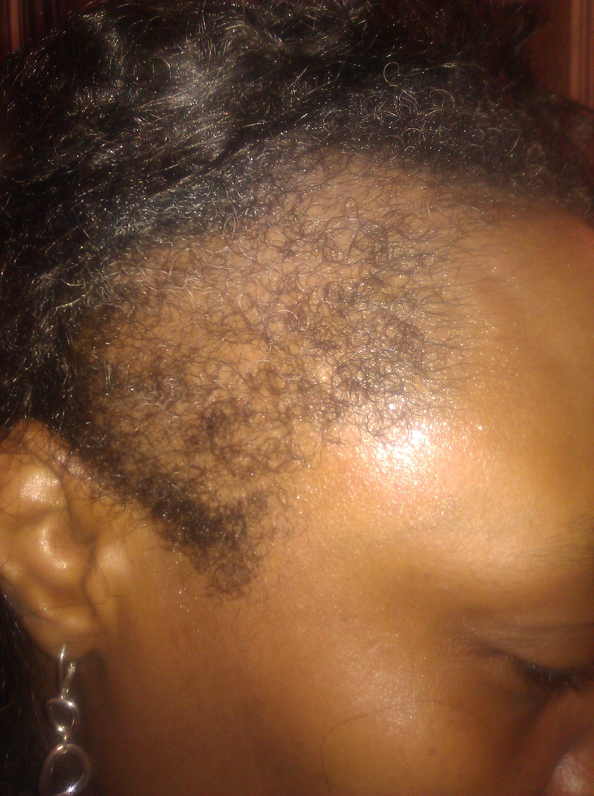 No Edges Hair : edges, Helped, Regrow, Edges, Months, Marketplace