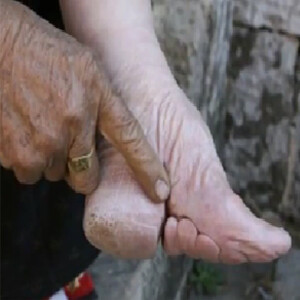Foot - Binding - Chinese