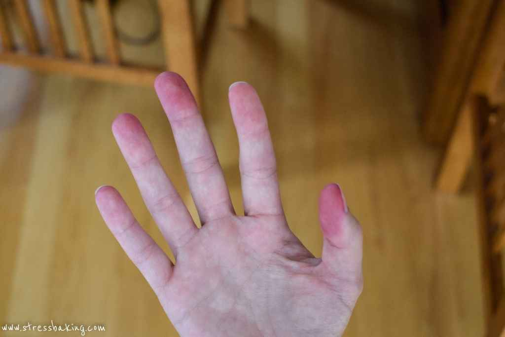 Beet stains on hands