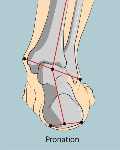 Over-Pronation