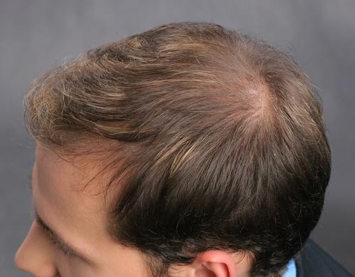 Frisuren Für Männer Mit Lichtem Haar Schöne Frisuren