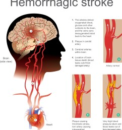 hemorrhagic strokes are caused by blood leaking into the brain this occurs when a weakened blood vessel ruptures and normally occur as a result of  [ 3893 x 4301 Pixel ]