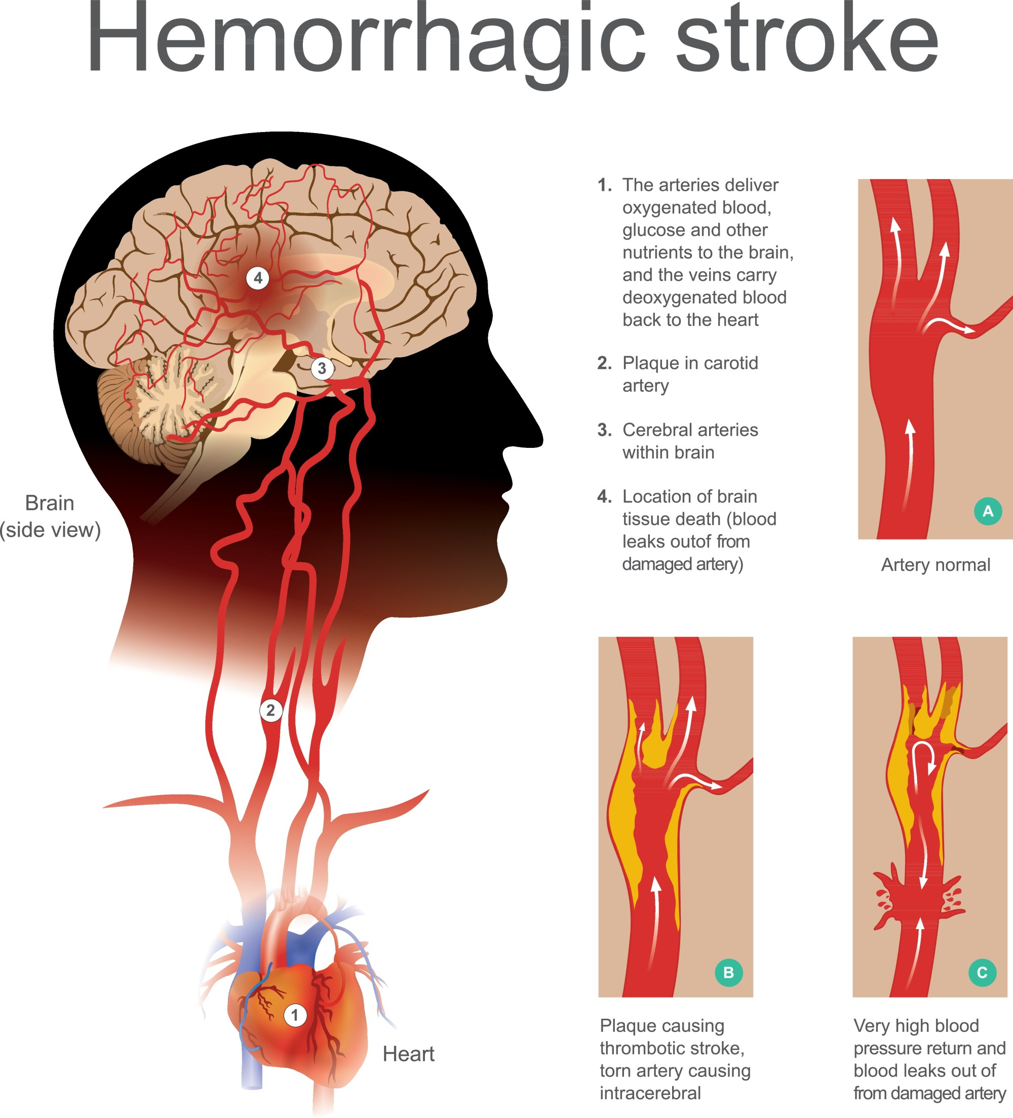 hight resolution of hemorrhagic strokes are caused by blood leaking into the brain this occurs when a weakened blood vessel ruptures and normally occur as a result of