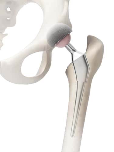 all-metal hip