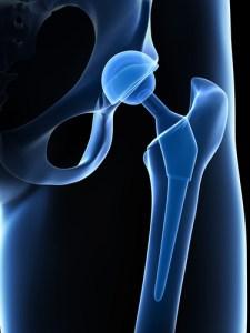 metal hip implant