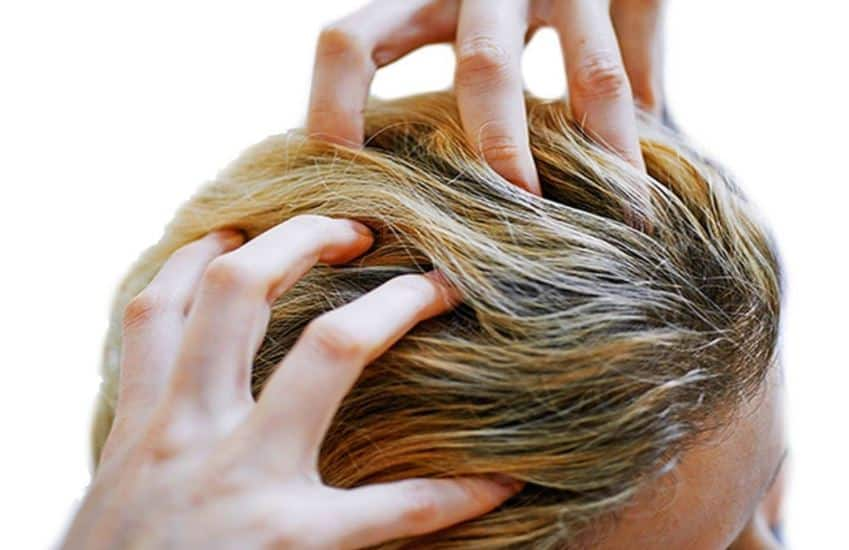 Itchy Scalp No Dandruff Causes Shampoo And Treatment