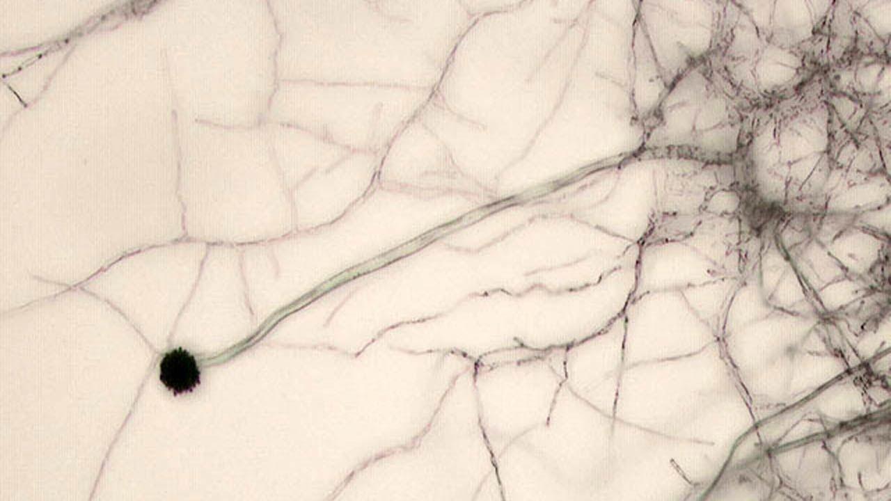 Микроскоптың астындағы саңырауқұлақ аспергилл