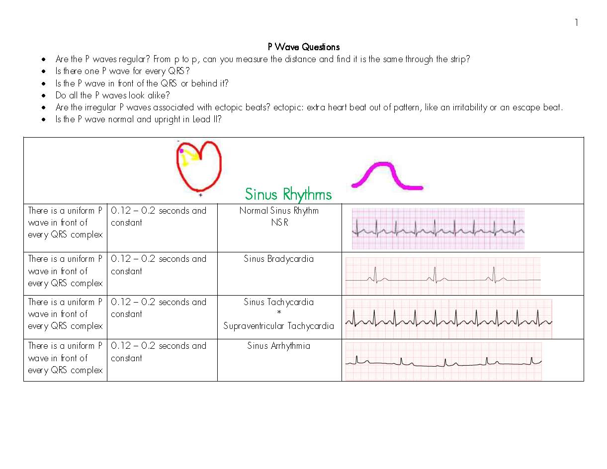 Eads Cardiac Ekg Worksheet