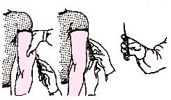 Как правильно делать укол взрослым: видео внутримышечной, подкожной инъекций