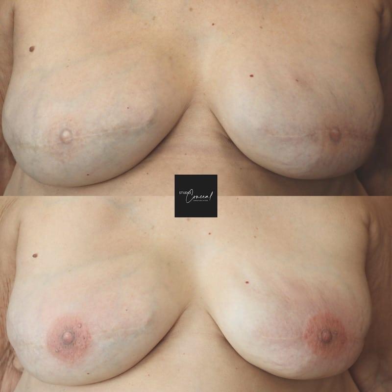 3d nipple tattoo