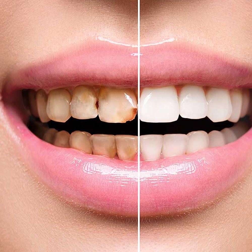 Estetica dentale - studio dentistico Di Conza Foggia