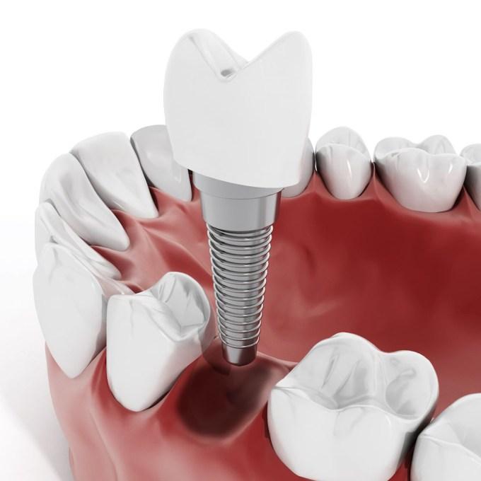 Implantologia- Studio dentistico Di Conza Foggia