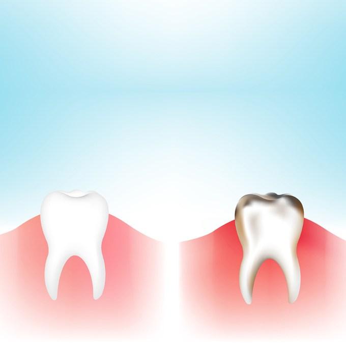 Odontoiatria conservativa cos'è