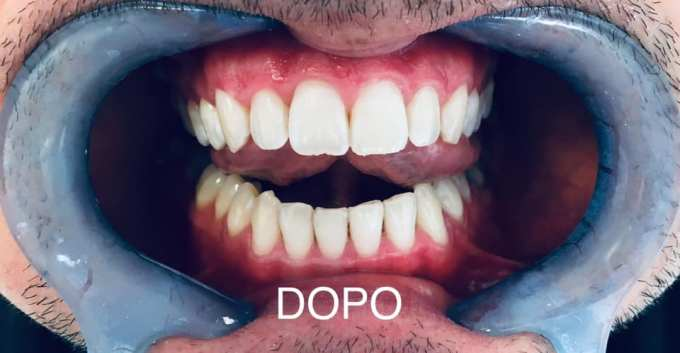 sbiancamenti dentali a led