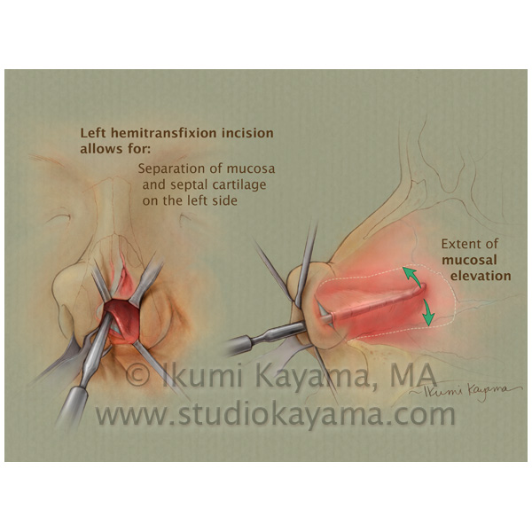 medical illustration septoplasty procedure
