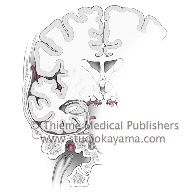 coronal section of brain