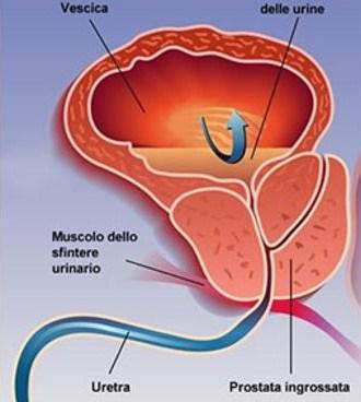 OSTEOPATIA BIODINAMICA PER L'IPERTROFIA PROSTATICA BENIGNA