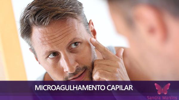 tratamento de microagulhamento com dermaroller em brasilia capilar calvicie