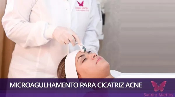 tratamento de microagulhamento com dermaroller em brasilia cicatriz de acne