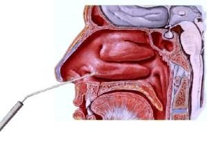 Poliposi nasale Endoscopia nasale Sinusite Ipertrofia Turbinati Decongestione dei Turbinati Deviazione Settale Patologia Nasale 08