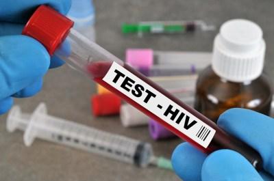 エイズ(AIDS)について改めて知ろう!現役講師がわかりやすく解説!